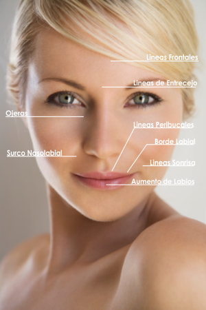 belleza-sin-cirugia-acido-hialuronico